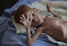 starving children Yemen